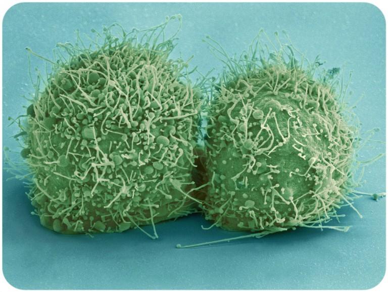 HeLa V, Obrazdwóch-komórek linii HeLa świeżo po podziale wykonane skaningowym mikroskopem elektronowym, źródło: wikicommons
